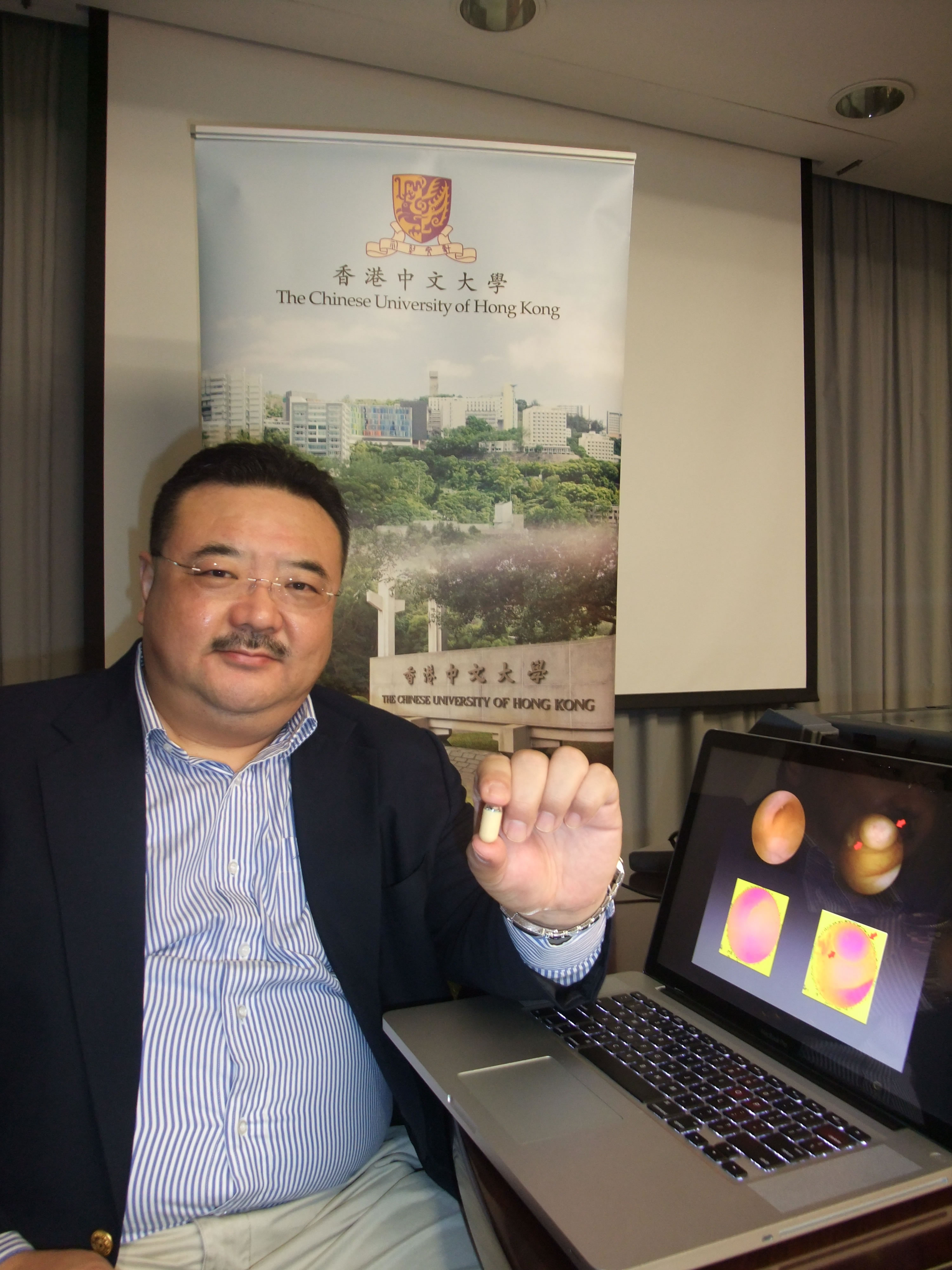 Prof. Max Meng and his research team at the Electronic Engineering Department of CUHK has greatly enhanced the function of capsule endoscope