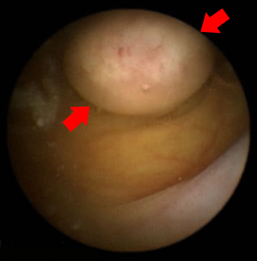 Intestinal polyp image taken by a capsule endoscope
