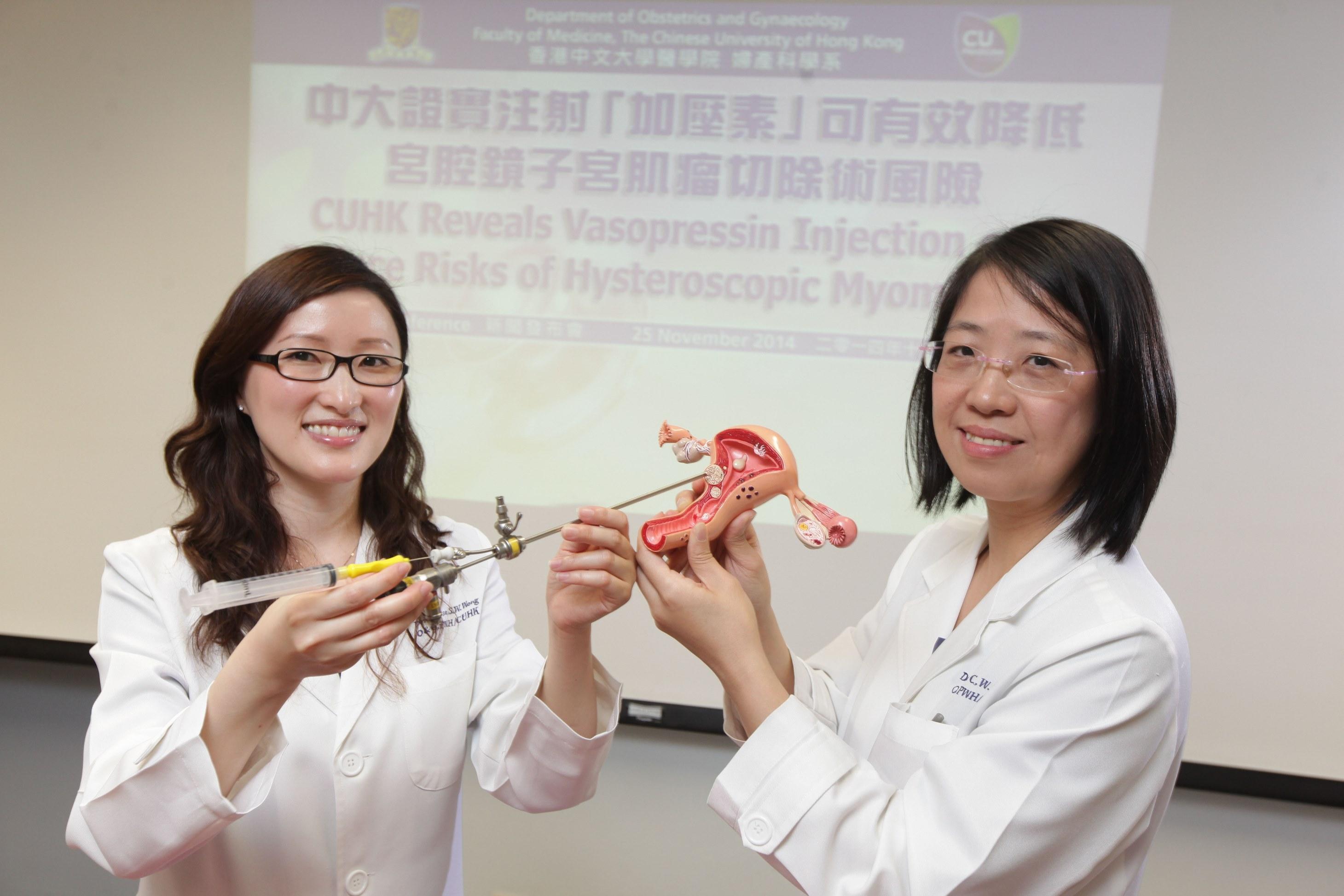 中大婦產科學系名譽臨床助理教授黃思慧醫生(左)手持的宮腔鏡和取卵針可將「加壓素」直接注射於「黏膜下肌瘤」,有助減低進行「宮腔鏡子宮肌瘤切除術」時吸收過量液體的風險。