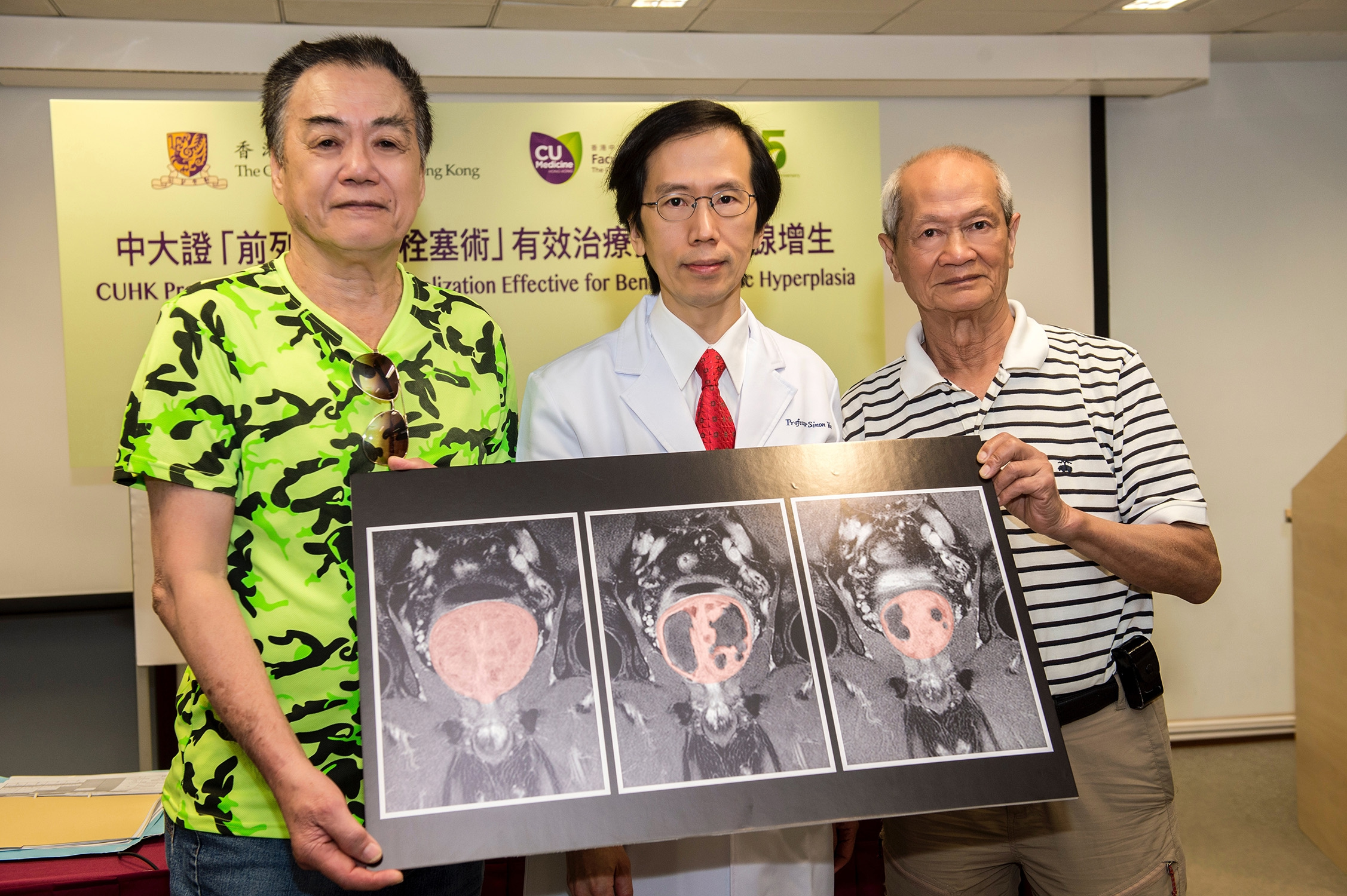 徐先生(左)及周先生(右)曾因為良性前列腺增生而出現泌尿問題。他們表示「前列腺動脈栓塞術」大大舒緩了相關徵狀,治療期間亦沒有感到不適。