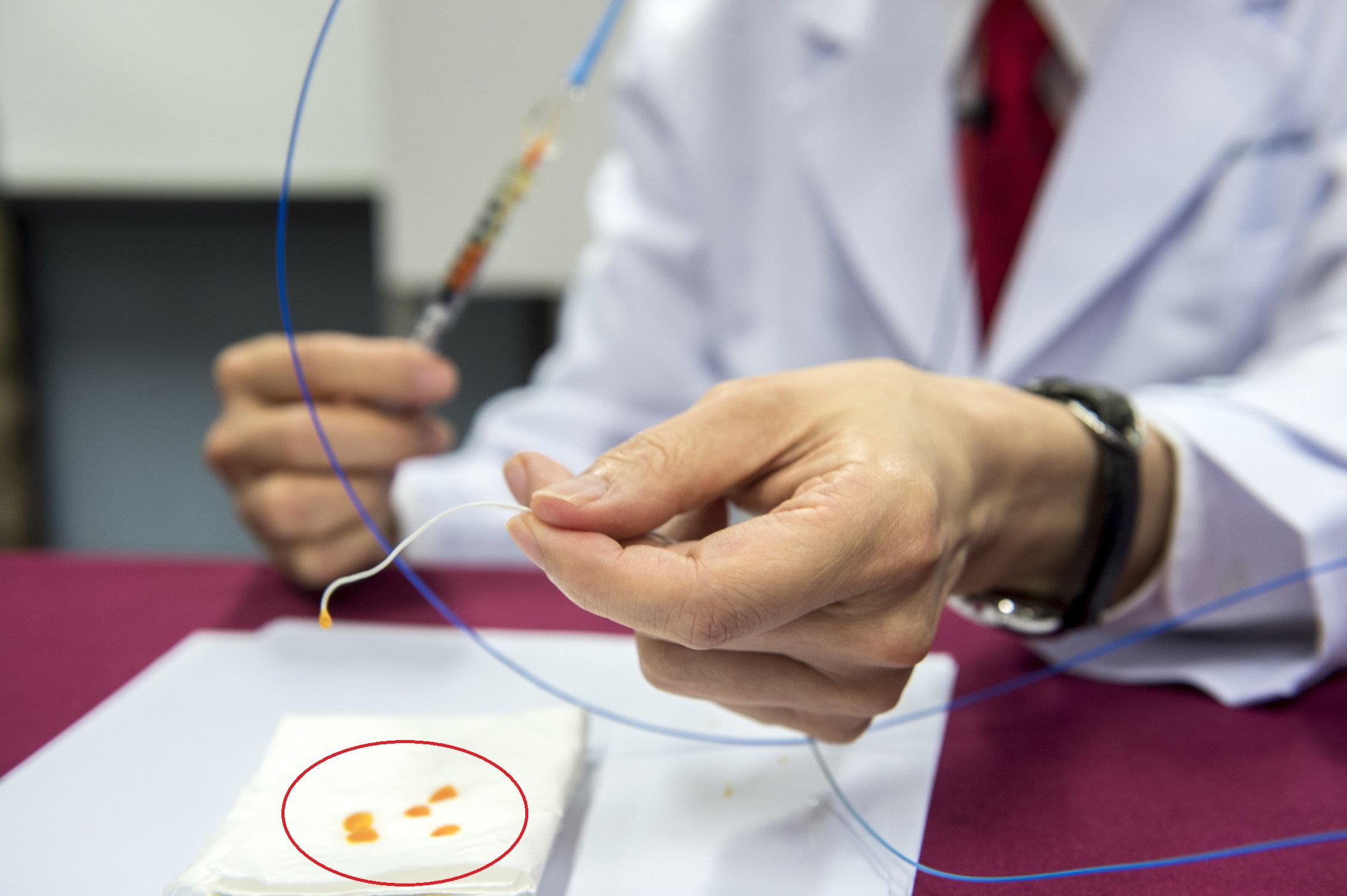 余教授展示栓塞術所使用的手術導管及特製微球(圖中紅圈所示的橙色粒子)。特製微球每粒直徑約只有100-300微米,用以堵塞前列腺的微血管。