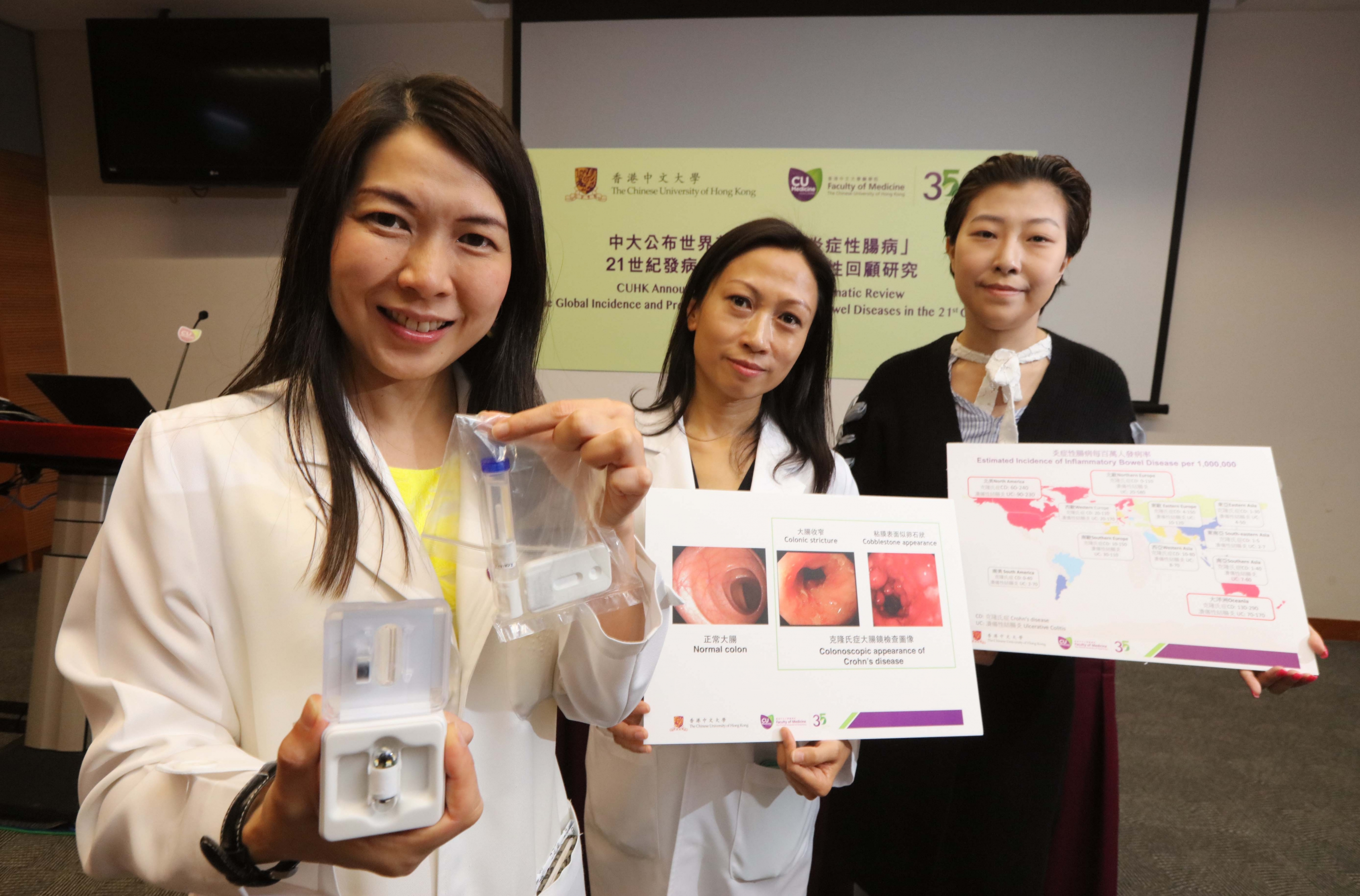 The Faculty of Medicine at CUHK announces the world's first systematic review of the global incidence and prevalence of Inflammatory Bowel Diseases (IBD) in the 21st century and found the incidence in Hong Kong having risen about 30 times in the past 30 years. Study results have just been published in the leading medical journal The Lancet. (From left) Prof. Siew NG and Chief Nursing Officer Ms Jessica CHING from the Department of Medicine and Therapeutics, Faculty of Medicine at CUHK, and the IBD patient Miss SUM.