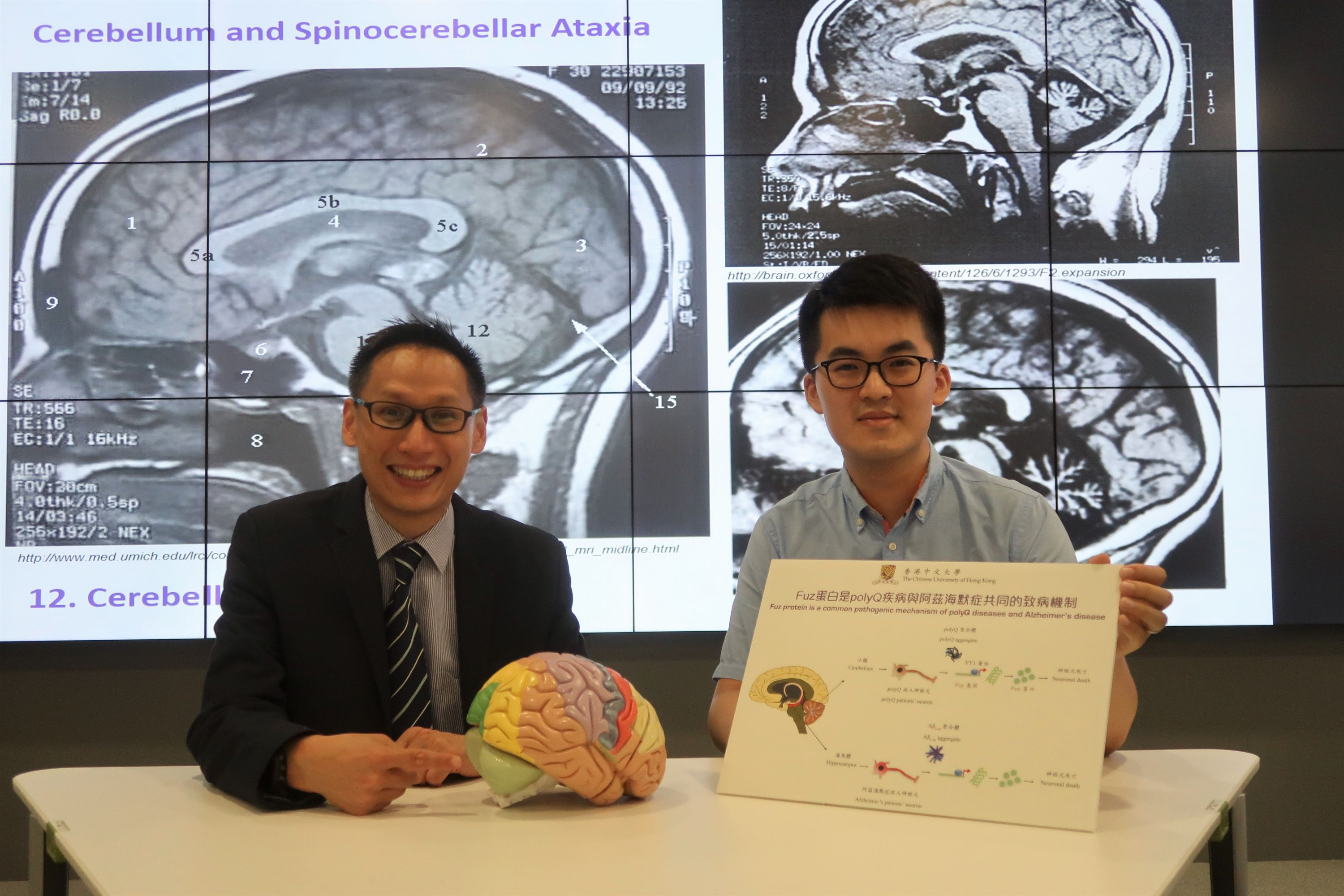 Professor Edwin Chan (left) and Dr Stephen Chen of CUHK School of Life Sciences point out that overexpressed Fuz also presents in common neurodegenerative diseases such as Alzheimer's disease