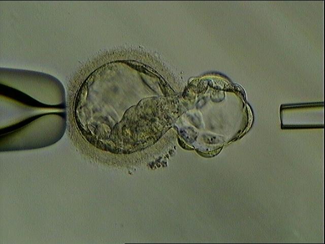 胚胎植入前基因测试。