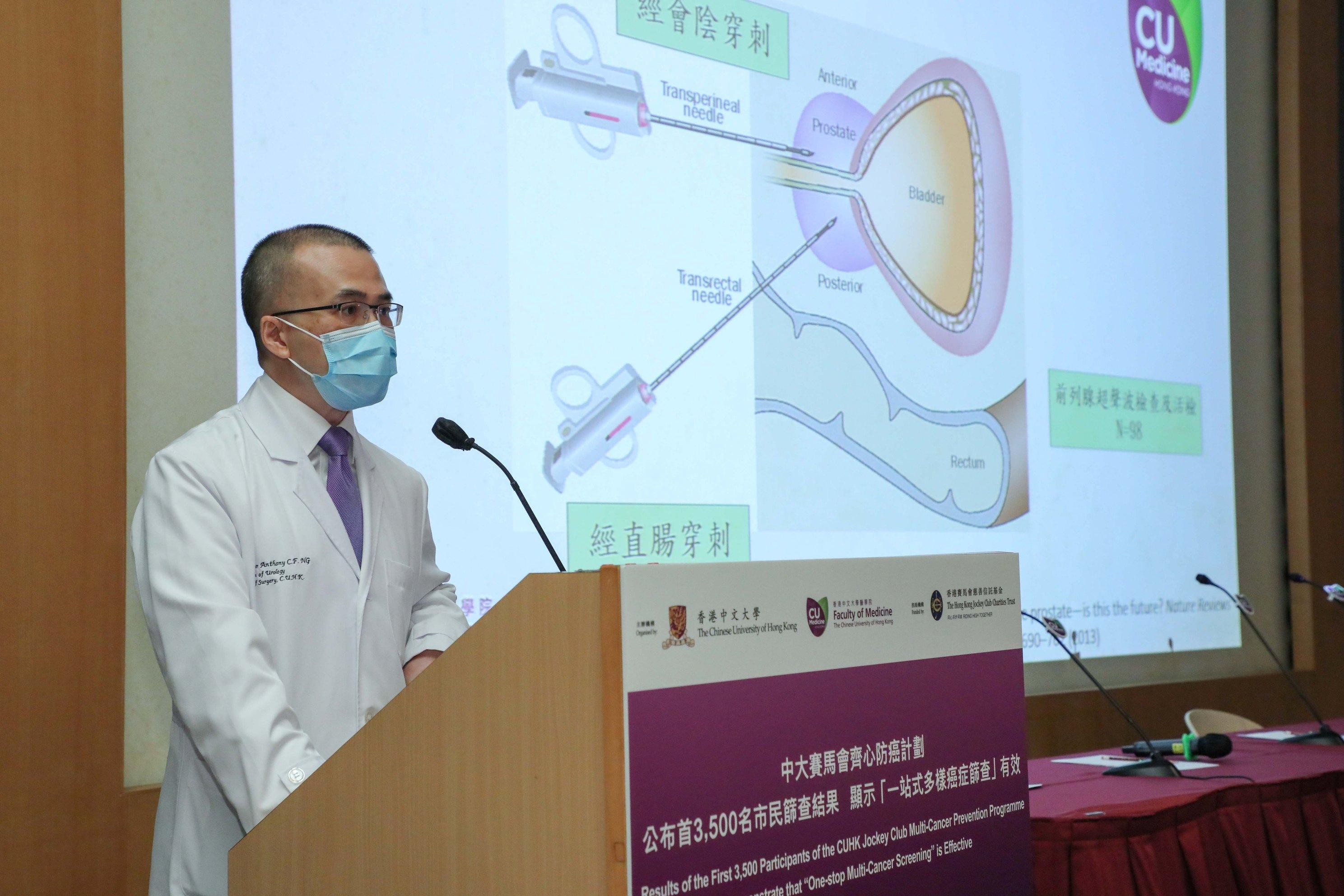 吴志辉教授指出,早期前列腺癌没有太多明显病征,是次筛查发现的癌症个案,也有四分之一病情属于第三及第四期。