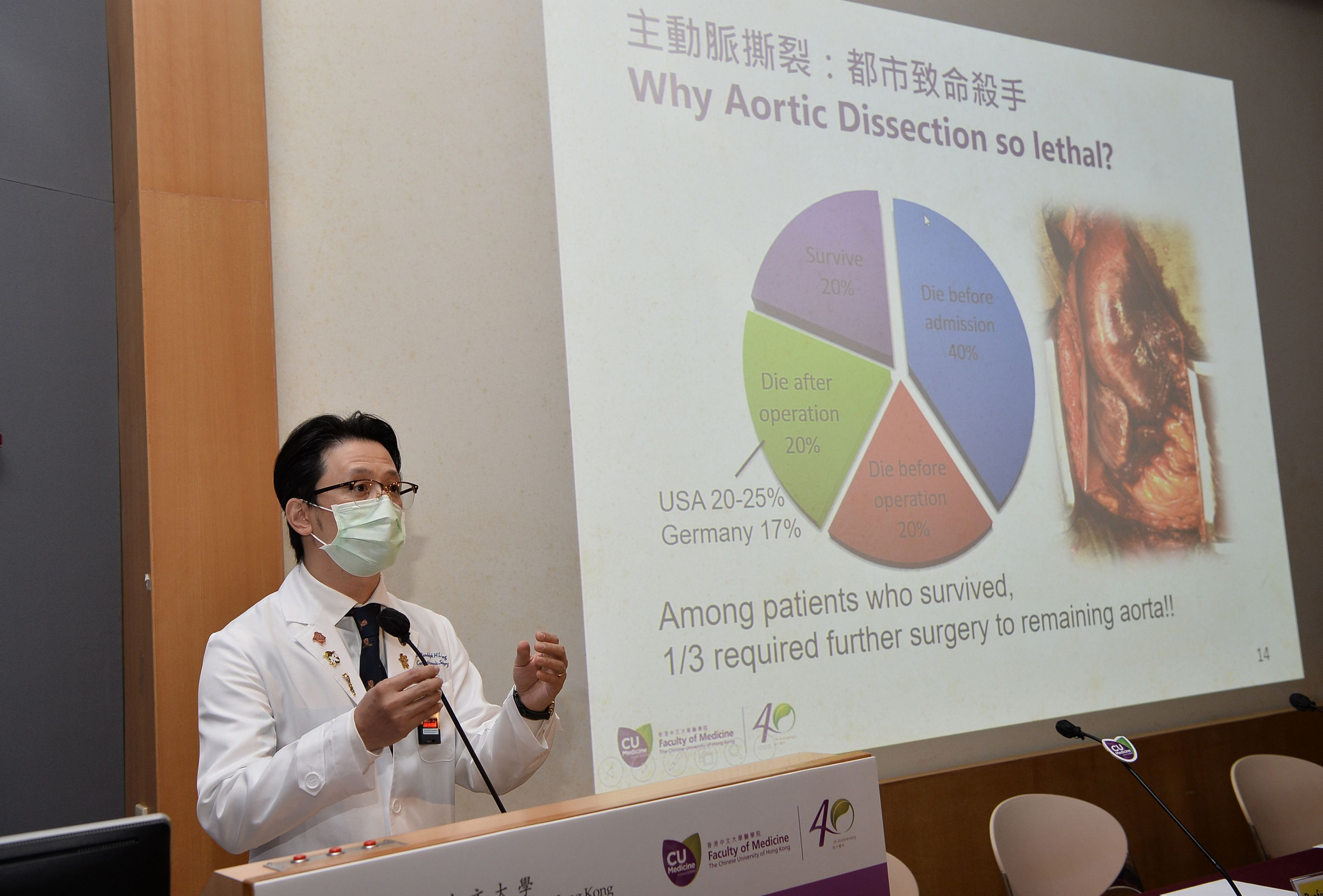 Dr. Randolph Hung Leung WONG says aortic aneurysm is a silent killer as 95% of cases carry no symptoms. Complications such as aorta dissection and rupture can result in life-threatening bleeding or sudden death.