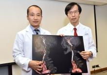 中大醫學院內科及藥物治療學系利國偉腦神經學副教授梁慧康醫生(左)和影像及介入放射學系余俊豪教授介紹「頸動脈支架成型術」。