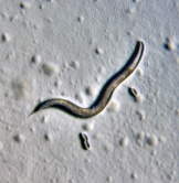 An adult C. elegans nematode (about 1 mm long) pictured with eggs
