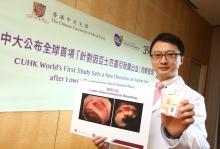 中大醫學院院長暨卓敏內科及藥物治療學講座教授陳家亮教授領導全球首項「針對亞士匹靈引致腸道出血」的數據分析。