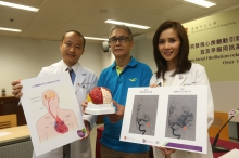 A research conducted by the neurology team from CUHK Faculty of Medicine shows that the number of Atrial Fibrillation-related stroke cases has seen 3 times higher over 15 years. (From left) Dr. Thomas LEUNG, Lee Quo Wei Associate Professor of Neurology, Department of Medicine and Therapeutics, CUHK; stroke patient Mr. LOK; and Dr. Yannie SOO, Clinical Professional Consultant, Division of Neurology, Department of Medicine and Therapeutics, CUHK.