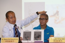 Dr Thomas LEUNG (left) explains that Mr LOK's left cerebral artery was occluded by a blood clot several months ago when he had a stroke. His blood flow to left cerebral artery is back to normal after the blood clot was retrieved.