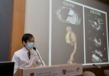 Professor Simon Chun Ho YU says PME device is convenient for point-of-care setting and with a much lower cost compared with CT scan or traditional transthoracic echocardiography. It is ideal for screening TAA patients and allows early intervention.