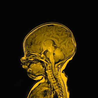 中大大腦與認知研究所誠邀早產嬰兒參與語言及認知發展研究計劃。參與的早產嬰兒會接受腦部磁力共振掃描及一系列專家評估,了解腦部發育狀況,包括一些微小組織病變或異常。