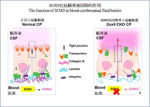 在正常情況下(左圖),脈胳叢的上皮細胞結構緊密,形成一個濾網阻止對腦部有害物質進入腦脊液。當SOX9基因出現異常(右圖),脈胳叢會因缺乏第九型膠原蛋白,導致細胞結構鬆散,就像穿洞的濾網,失去屏障功能。