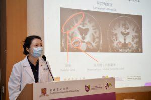 朱昭穎教授表示,患者出現輕度認知障礙階段時,大多難以透過肉眼觀察磁力共振影像來偵測腦部萎縮的情況及規律。